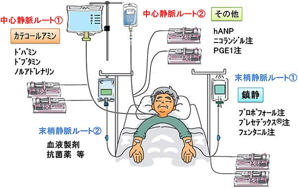 冠動脈バイパス術後のルート選択例